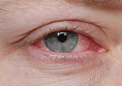Patient with pink eye in need of treatment