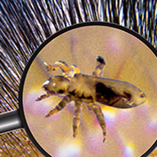 picture of body lice