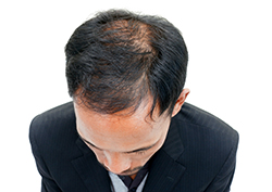 Young man who is prematurely balding who needs hair loss treatment