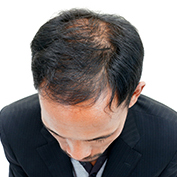 Picture of balding man searching for Hairloss prevention