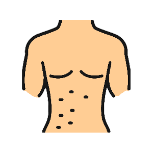 Get treatment for skin conditions. Drawing of torso with rash