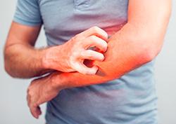 Online Scabies Prevention - Online Permethrin Treatment