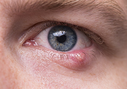 Close-up of a man's eye with a stye on the lower eyelid