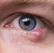 Close-up of man with a stye on the lower eyelid