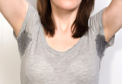 Woman with severe underarm sweat showing through her shirt