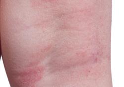 Eczema on skin of an extremity