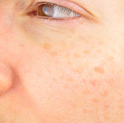 Woman with dark spots on face