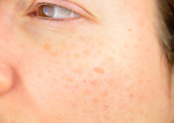 closeup of a woman cheek with dark spots